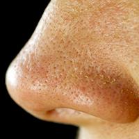 Fatty Nose Pores